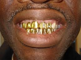 gold crowned teeth
